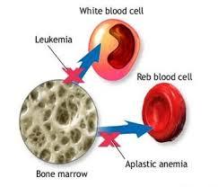 Obat Herbal Anemia Aplastik Ibu Hamil